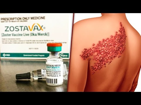 Shingles Vaccine Zostavax Is Causing What It's Designed To Prevent - The Ring Of Fire
