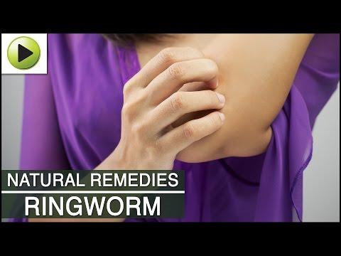 Skin Care - Ringworm - Natural Ayurvedic Home Remedies