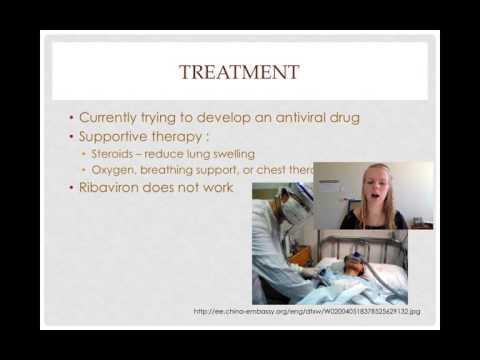 SARS Presentation