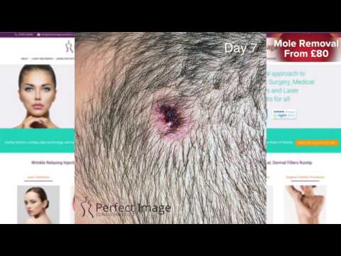 Mole and Wart Laser Removal From £80 in London