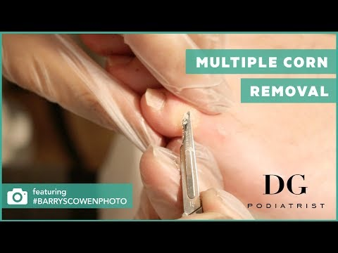 Multiple corn removal: Left foot