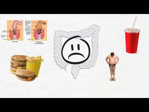 Diarrhea hiv