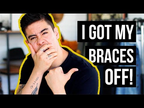 BRACES ARE FINALLY OFF! *BEFORE & AFTER PHOTOS* | JAIRWOO