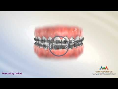 Dental Midline Treatment by Rubber Bands - Orthodontic Instruction