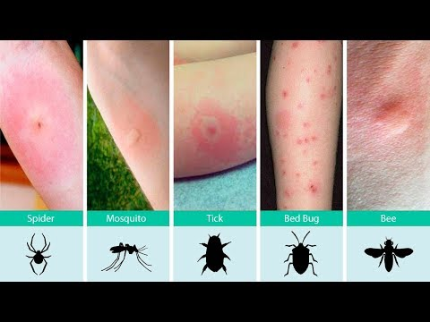 Ouch, What Bit Me? How to Identify Common Bug Bites and What To Do About It