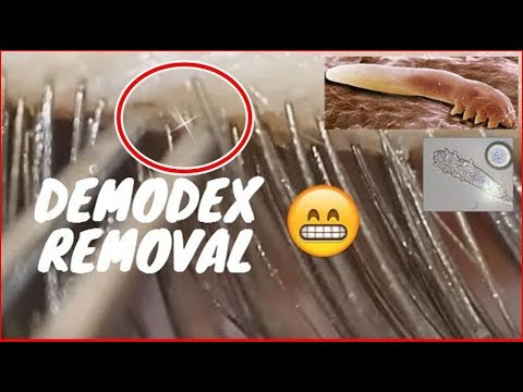 Removing Demodex on my eyelashes. #2