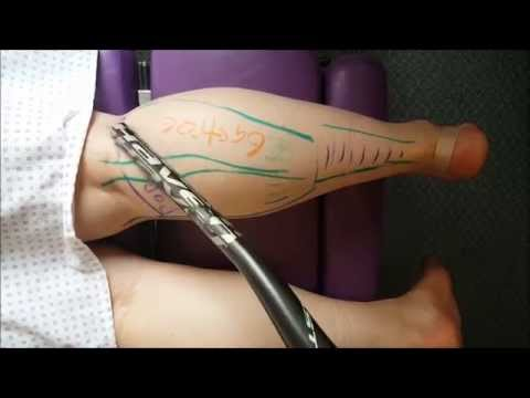 Anatomy 101: Calf Muscles And Pain - Nottinghill Chiropractor Oakville