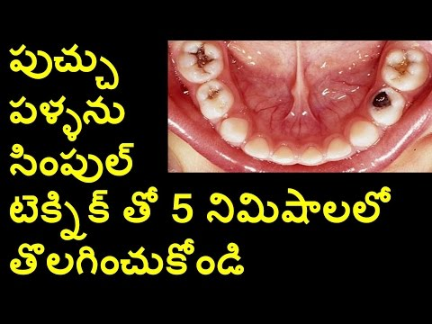 How To Solve Tooth Decay? | Natural Remedies | Health Tips | Movie Reviews