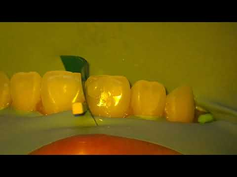 Repairing a Cavity in a Front Tooth