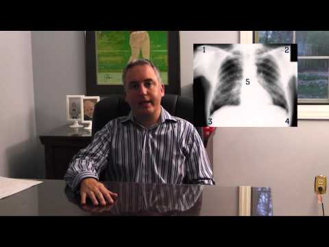 How to read a CXR, Quick Guide