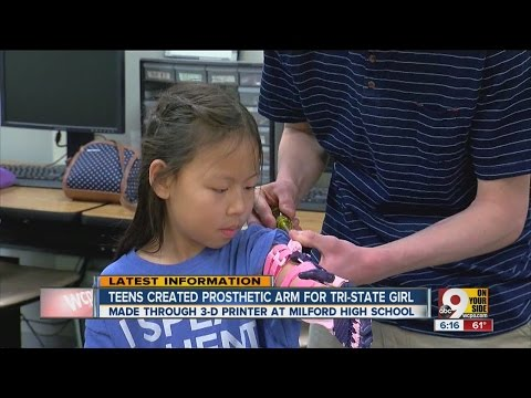 High schoolers make prosthetic arm... for $30