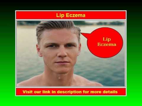 Lip Eczema - Please Watch Now!