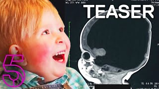 The Boy With No Brain | Extraordinary People | Channel 5