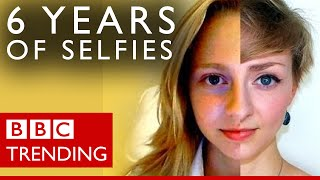 Trichotillomania: 6 years of selfies show beckie0