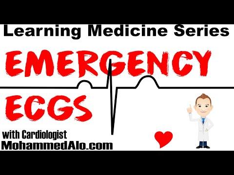 Emergency EKGs for Emergency Physicians