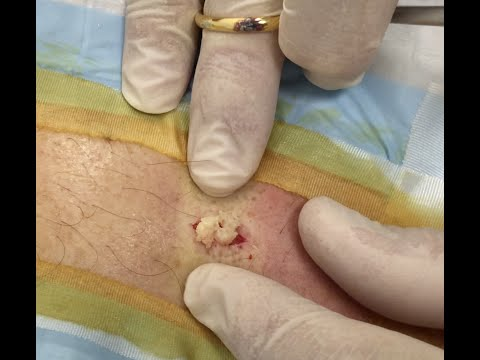 It's A St. Paddy's Day Back Cyst! Part 1
