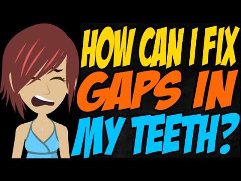 How Can I Fix Gaps in My Teeth?