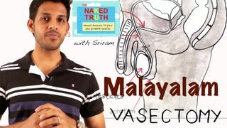 What is a Male Vasectomy - Malayalam