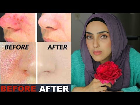 DIY Rose Spray For Tigher Pores + GLOWING Skin | 100% Effective ~ Immy