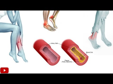 Exercises For Improving Blood Circulation In Legs