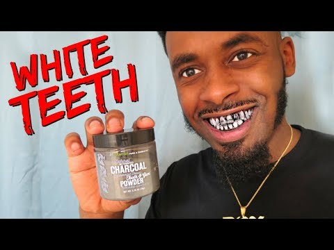 How To Whiten Teeth At Home | Teeth Whitening Option