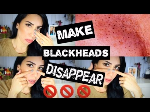 How To GET RID OF BLACKHEADS | 5 DIY Ways & DEMOS