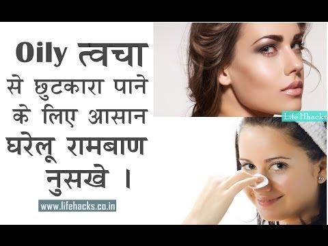 Oily त्वचा के लिए अद्भुत घरेलू नुस्खे   Homemade Remedies For Oily Skin   Must Watch