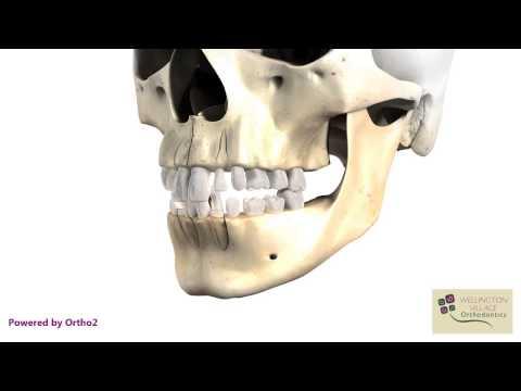 Primary to Permanent Progression - Wellington Village Orthodontics