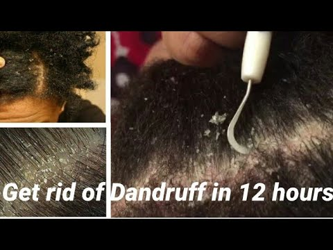 PERMANENTLY GET RID OF DANDRUFF IN 3 DAYS/ How To Treat Dandruff Fast/How To Treat Itchy Scalp