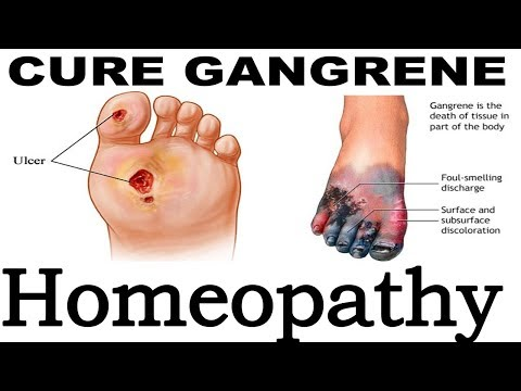 Gangrene - Discussion and Treatment in Homeopathy | Dr P.S. Tiwari