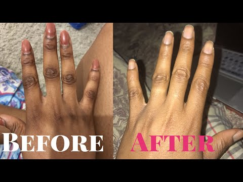 GET RID OF DARK KNUCKLES INSTANTLY HOME REMEDIES IN DAYS/WORKS LIKE MAGIC