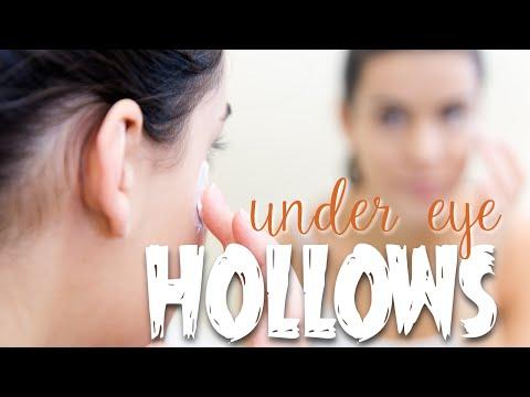 Treating Under Eye Hollows