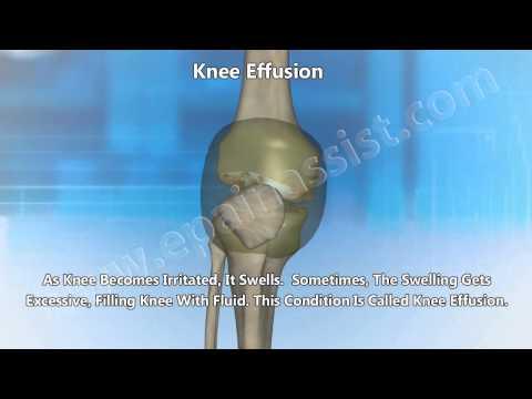 Knee Replacement Surgery Knee Arthroscopy for Knee Osteoarthritis