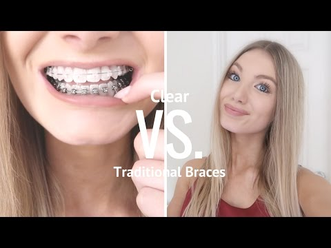 Clear VS Metal Braces | Are Clear Braces Worth It?