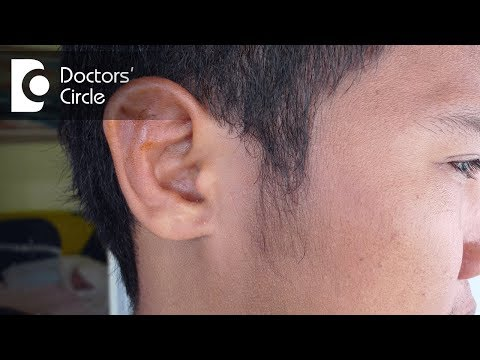 Is Cauliflower Ear a reversible condition? - Dr. Gayatri S Pandit