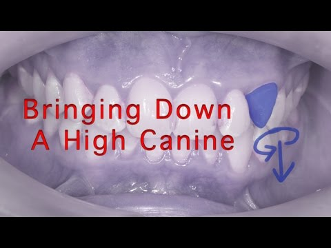 How to bring down a high canine tooth with Adult Braces