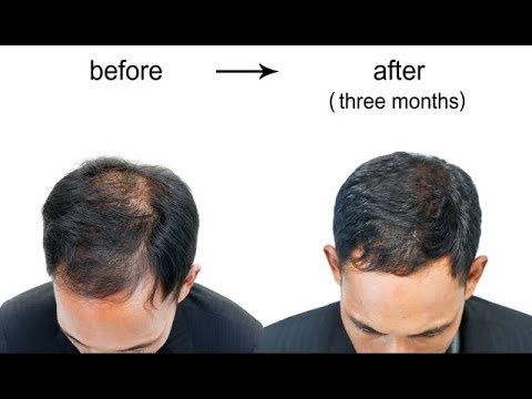 Home Remedies for Hair Growth - How to Grow Hair on Bald Head Home Remedies