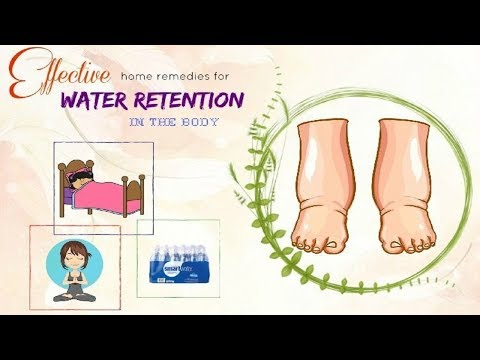 5 Home Remedies to Get Rid of Water Retention.