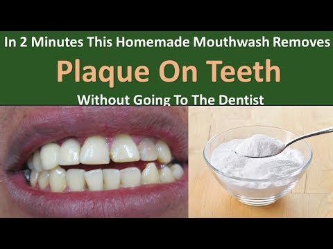 In 2 Minutes This Homemade Mouthwash Removes Plaque On Teeth Without Going To The Dentist