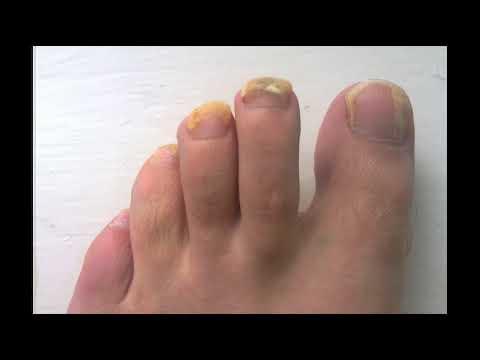 toenail fungus apple cider vinegar hydrogen peroxide: toenail fungus apple cider vinegar soak
