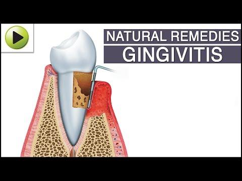 Gingivitis - Natural Ayurvedic Home Remedies