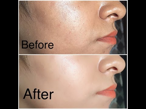 miracle oil for clear skin: tried and tested to remove acne scars, stretch marks and more