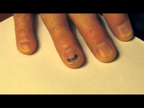 Sixty Five Days To Heal a Fingernail.