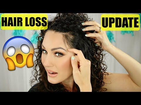 My PCOS Hair Loss UPDATE | The Glam Belle