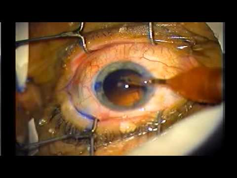 Cataract Surgery in 6 minutes Narrated, Dr.Sibley .. www.MarkSibleyMD.com