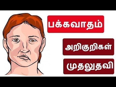 பக்கவாதம் ? (Stroke) - Everything You Need To Know - Symptoms,cause and Treatments options - Tamil
