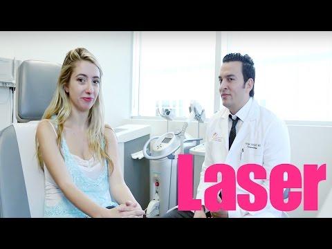 Removing Broken Blood Vessels on Face with Laser: My Story | Lauren Francesca