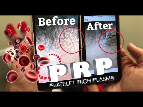 FOLLOW UP | PRP Hair Thickening Treatment!