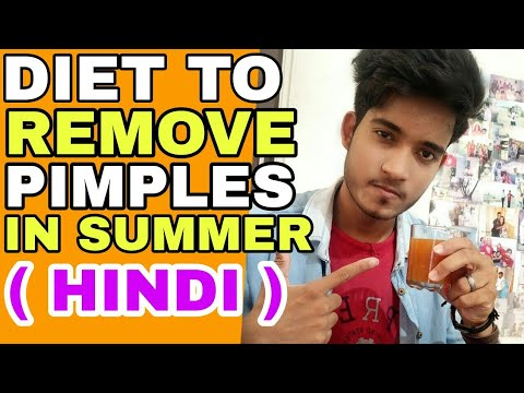 Diet To Remove Pimples | Hindi | What To Eat to remove pimple | Ye Khao pimple nahi hogi