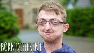 I'm 20 But I'm Ageing Too Fast | BORN DIFFERENT